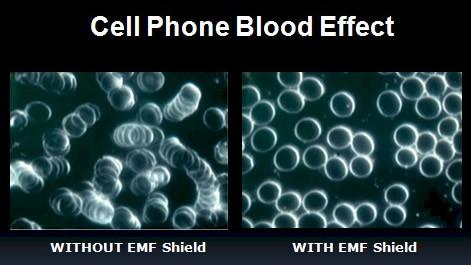 image of cellphone blood test